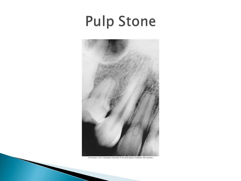 Pulp Stone