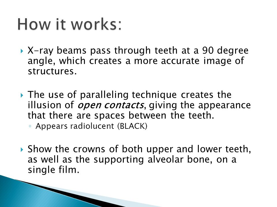 How it works: X-ray beams pass through teeth at a 90 degree angle, which creates a more accurate image of structures.