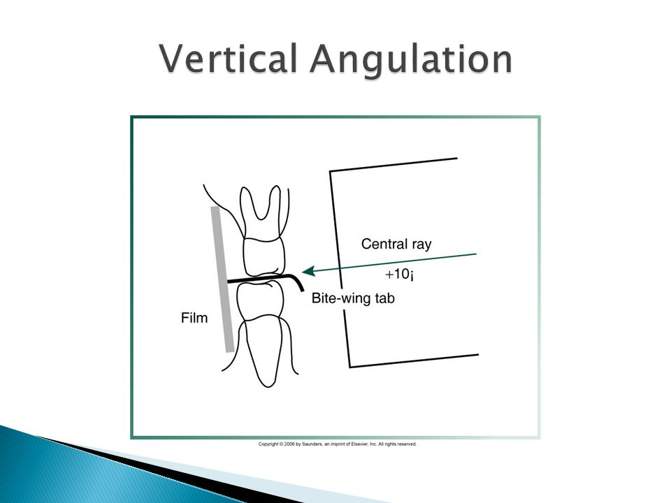 Vertical Angulation