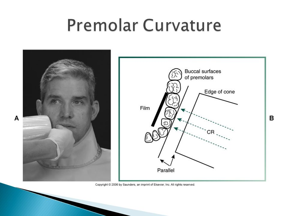 Premolar Curvature