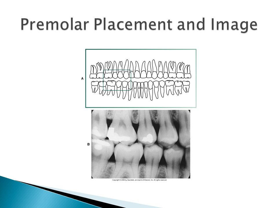 Premolar Placement and Image