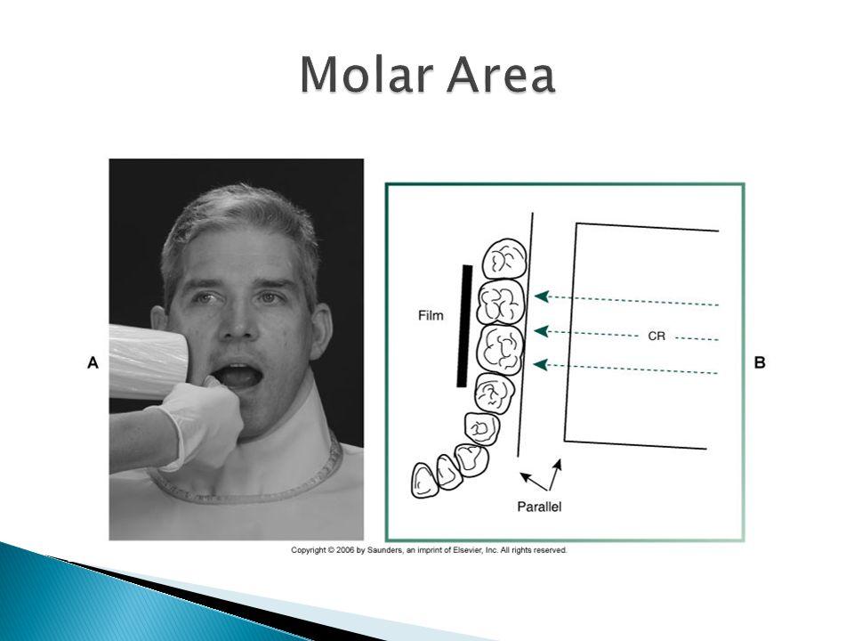 Molar Area