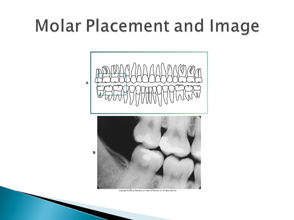 Molar Placement and Image