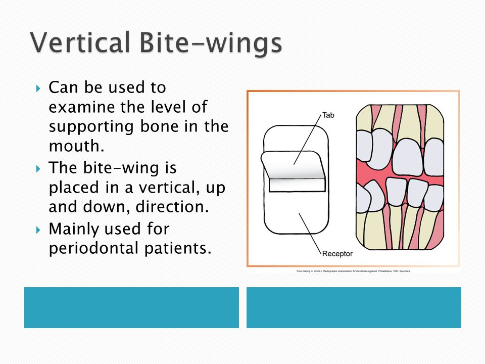 Vertical Bite-wings Can be used to examine the level of supporting bone in the mouth.