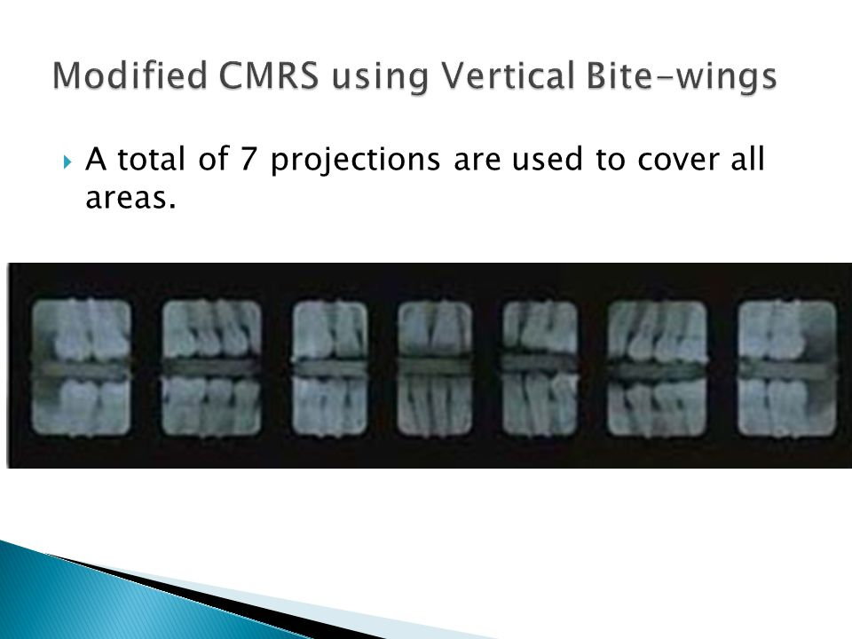 Modified CMRS using Vertical Bite-wings