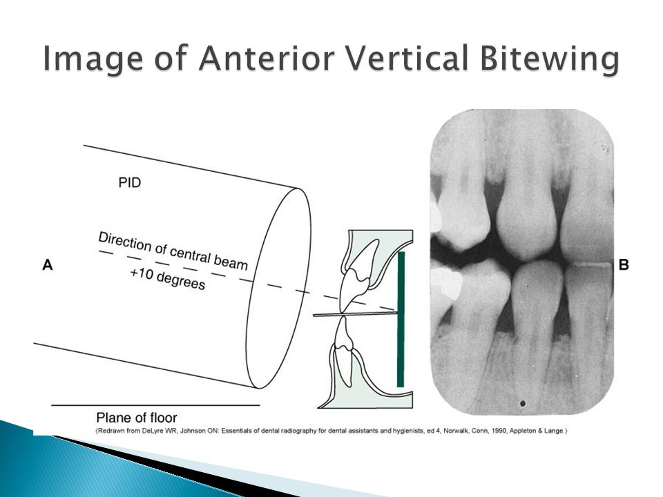 Image of Anterior Vertical Bitewing