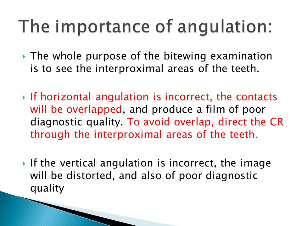 The importance of angulation: