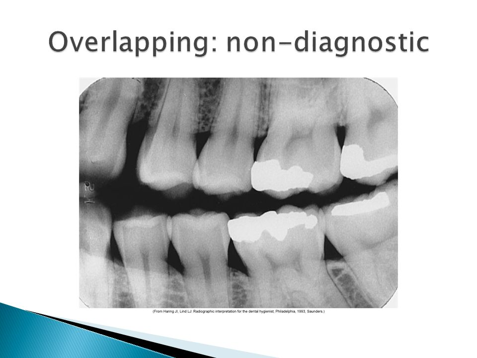 Overlapping: non-diagnostic