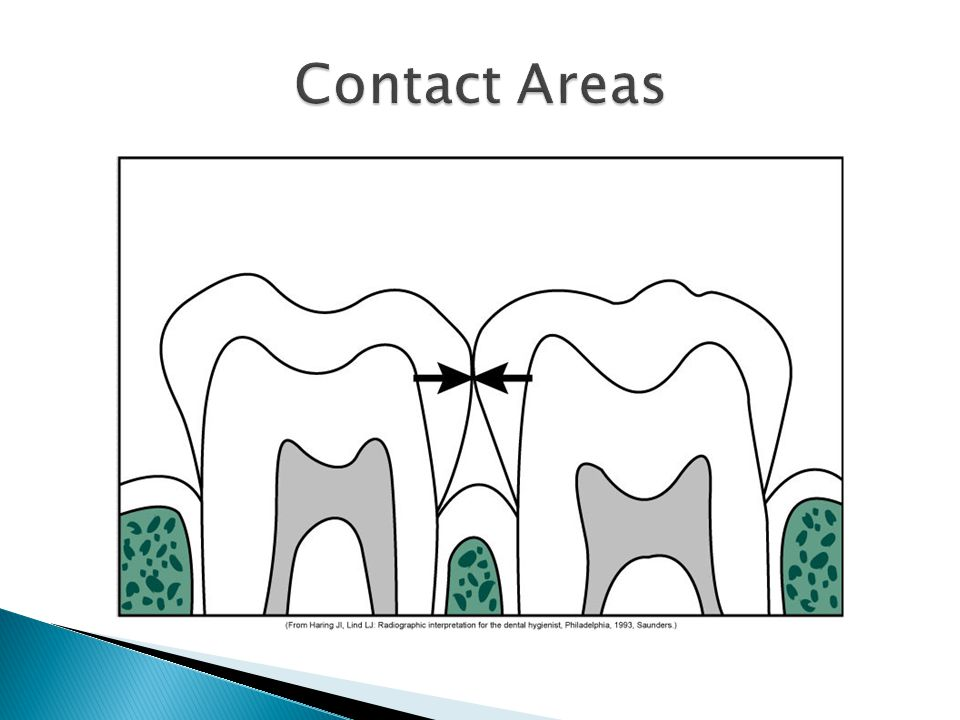 Contact Areas