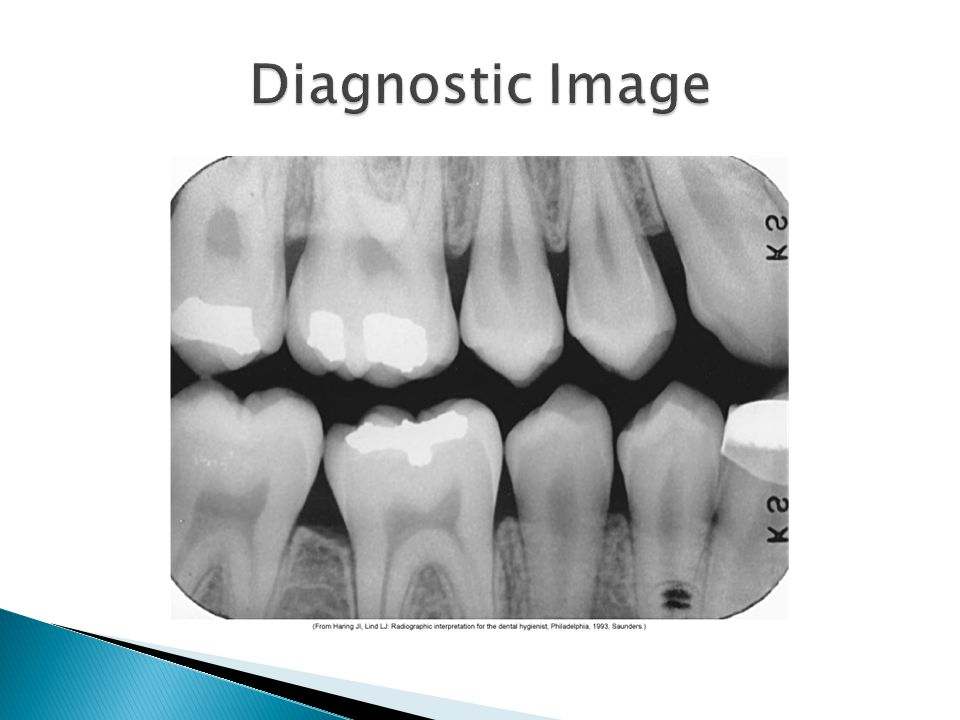 Diagnostic Image