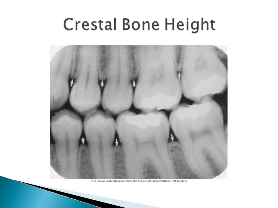 Crestal Bone Height