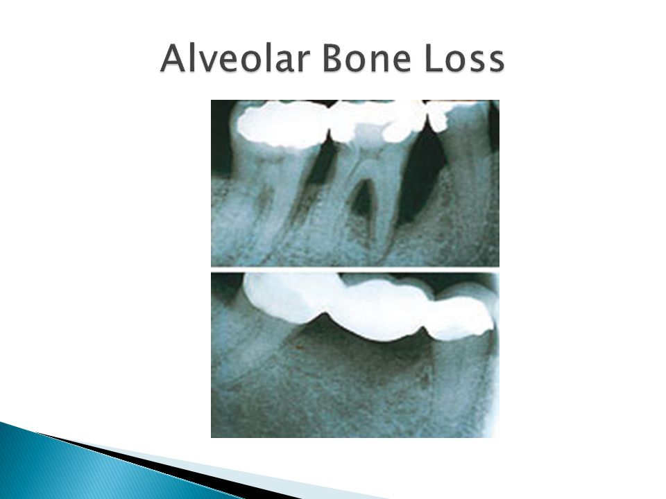 Alveolar Bone Loss