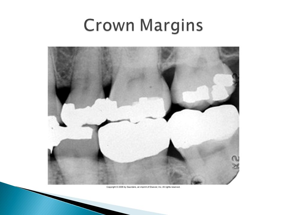 Crown Margins