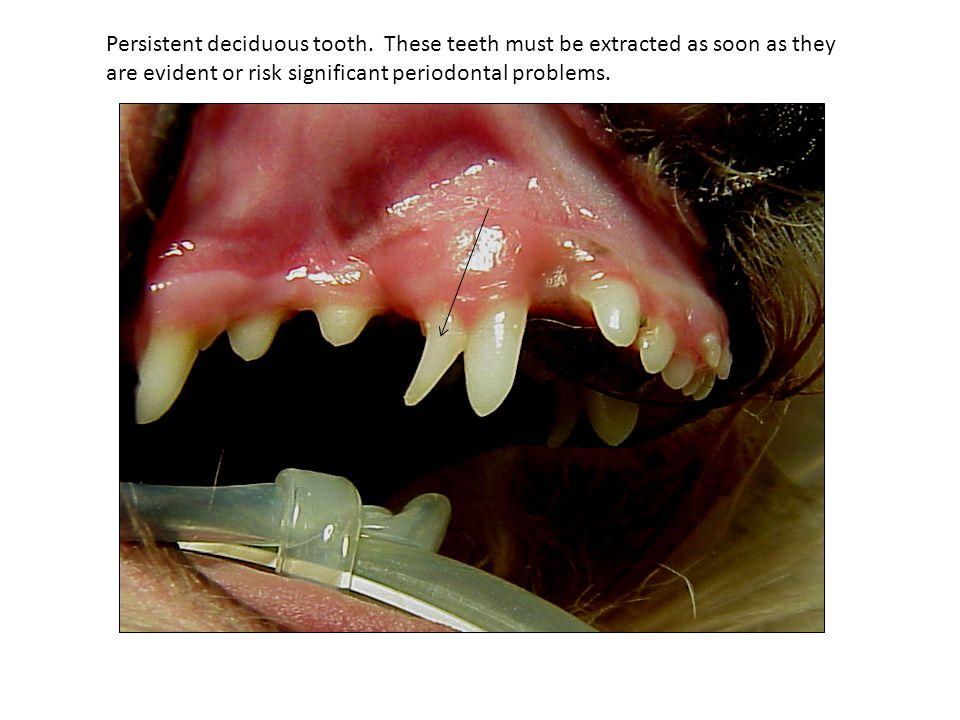 Persistent deciduous tooth