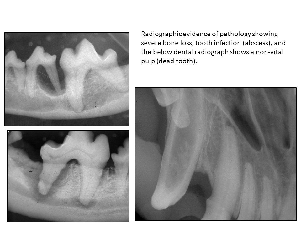 These radiographs were from different patients and all three had normal appearing gingiva and crowns.