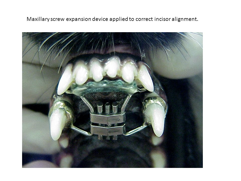 Maxillary screw expansion device applied to correct incisor alignment.