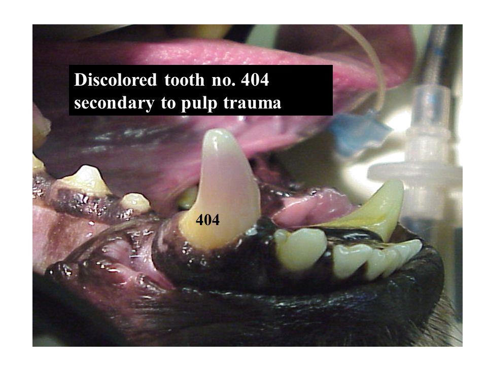 Discolored tooth no. 404 secondary to pulp trauma