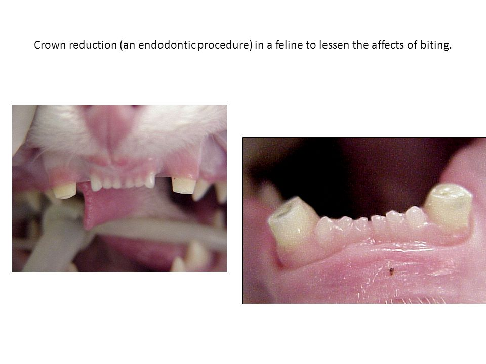 Crown reduction (an endodontic procedure) in a feline to lessen the affects of biting.