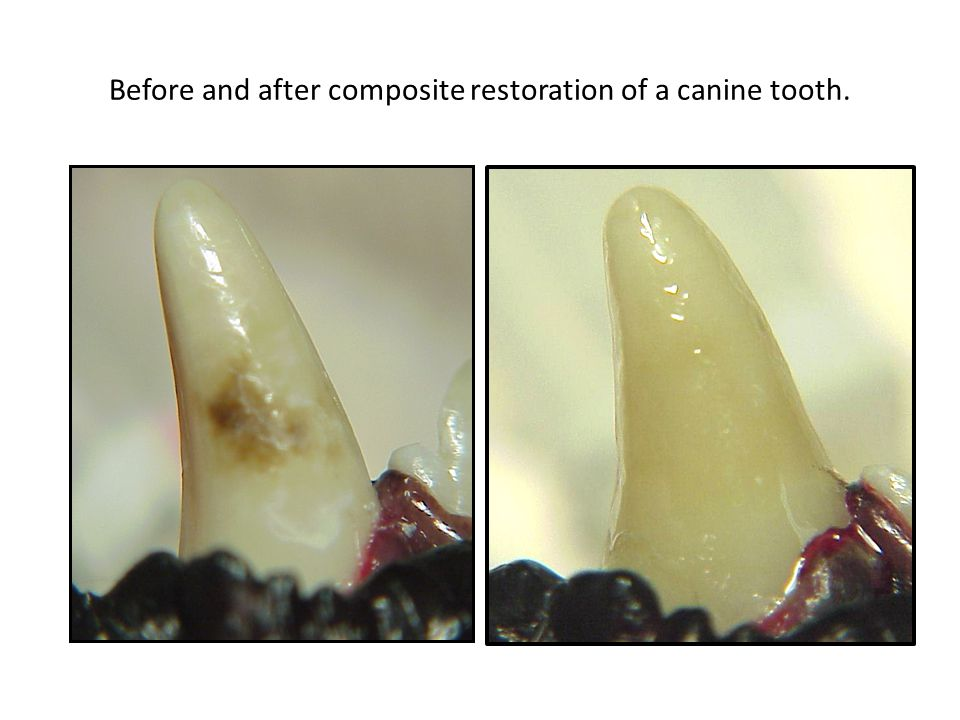 Before and after composite restoration of a canine tooth.