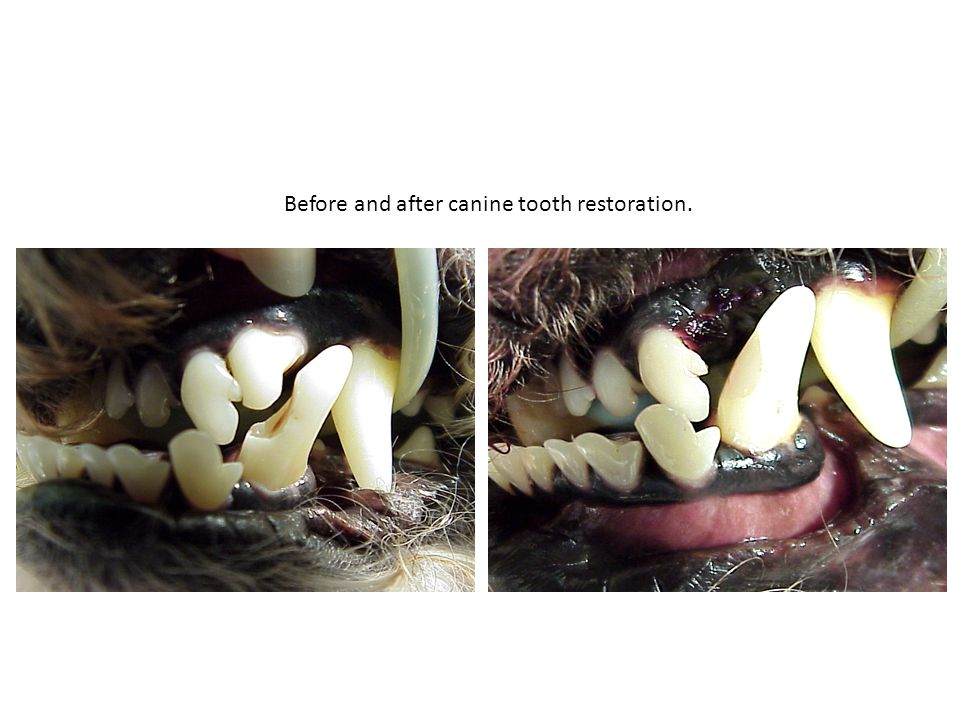 Before and after canine tooth restoration.