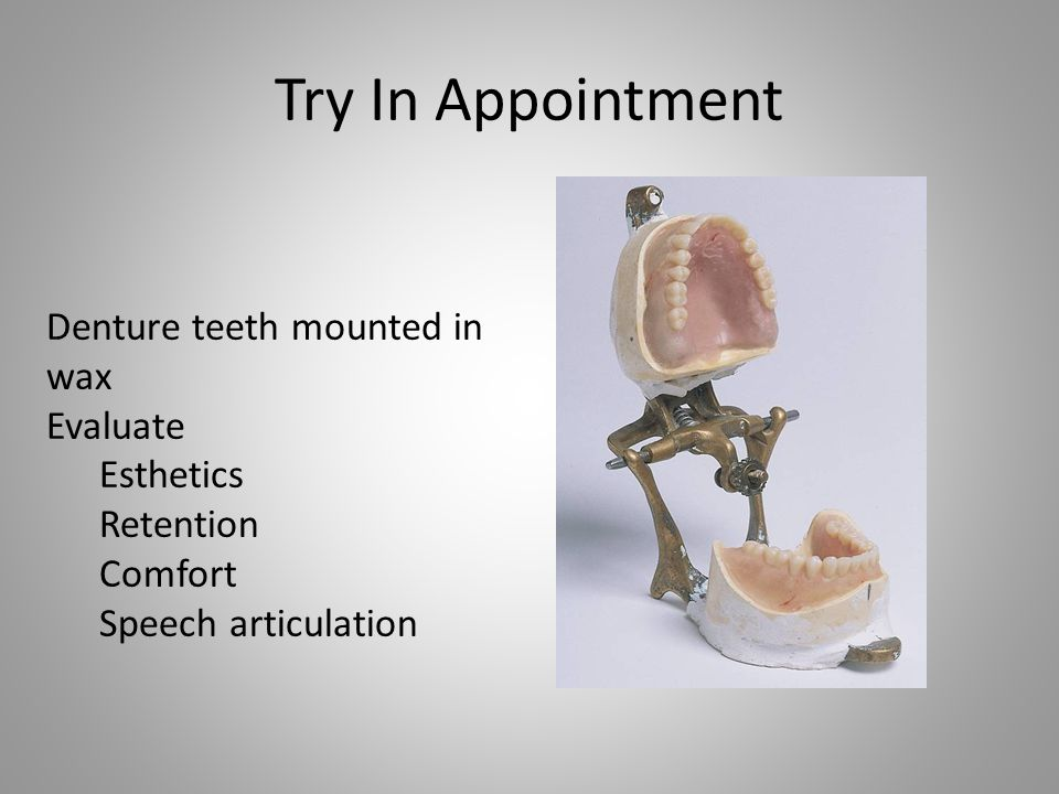 Try In Appointment Denture teeth mounted in wax Evaluate Esthetics