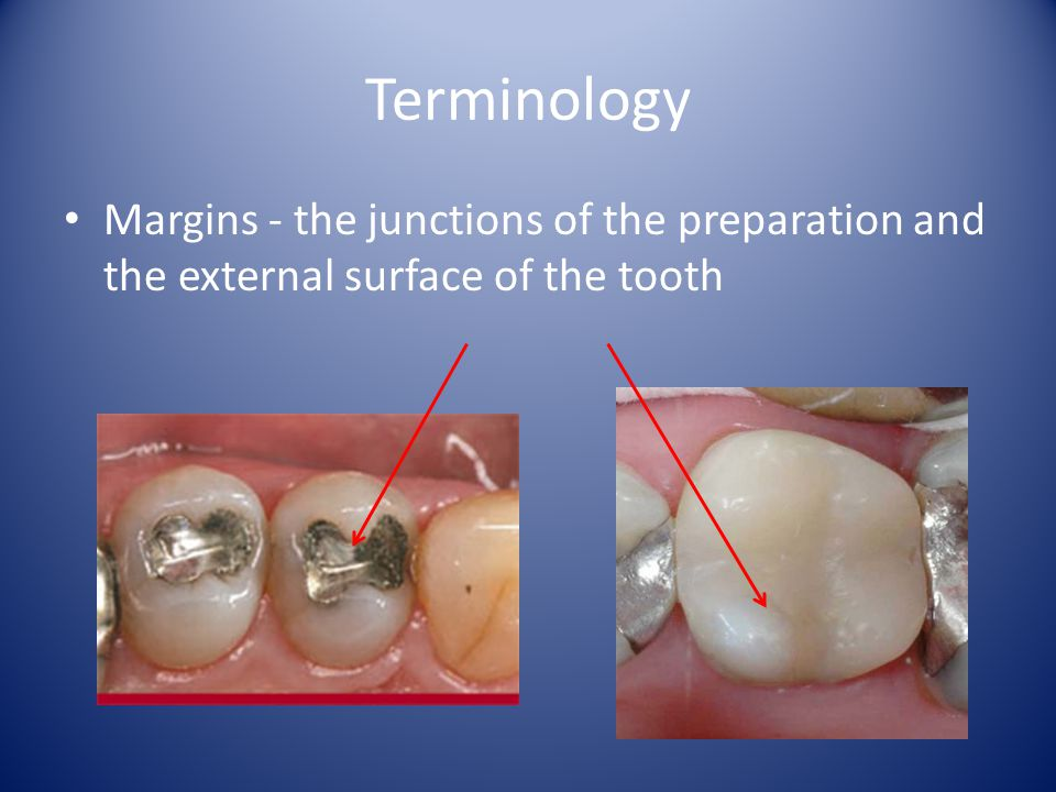 Terminology Margins - the junctions of the preparation and the external surface of the tooth