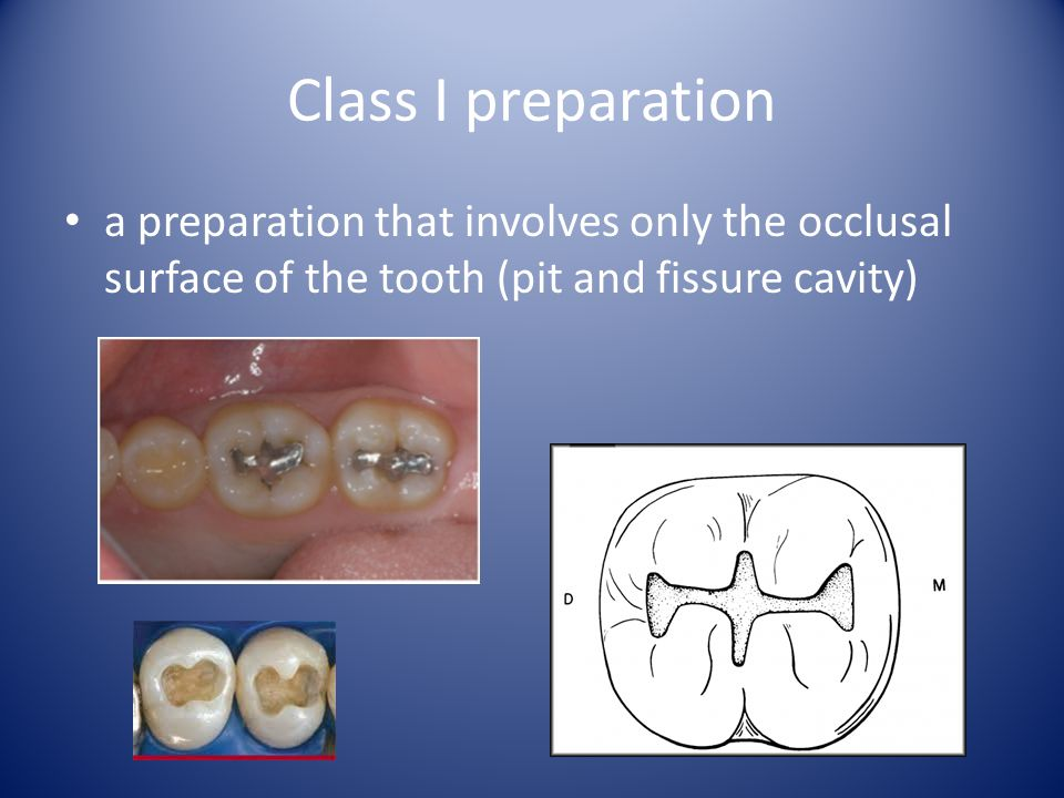 Class I preparation a preparation that involves only the occlusal surface of the tooth (pit and fissure cavity)