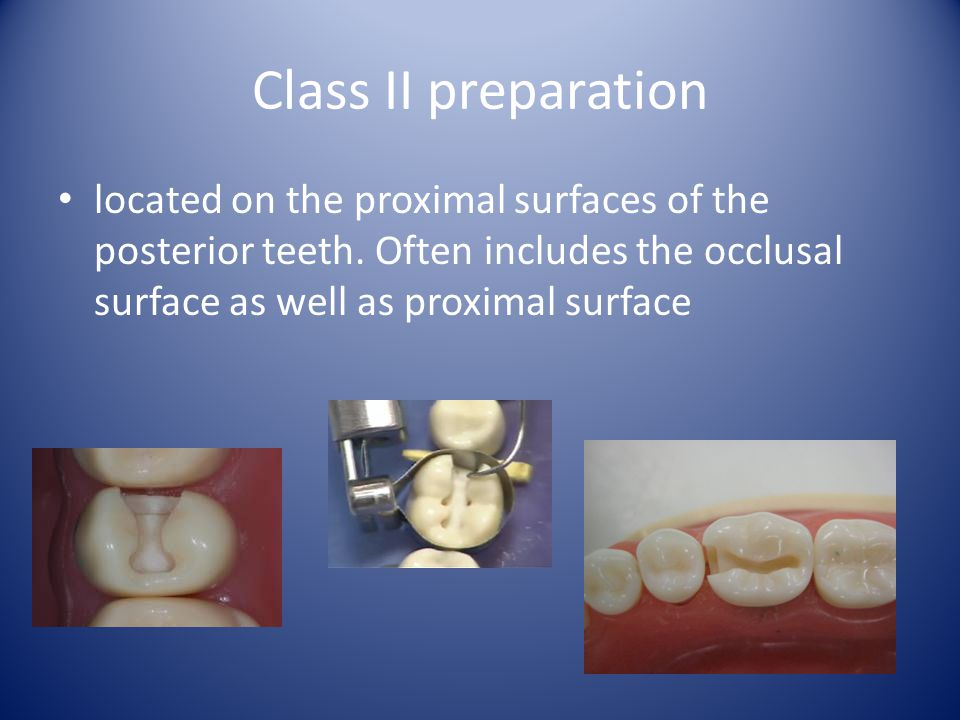 Class II preparation located on the proximal surfaces of the posterior teeth.