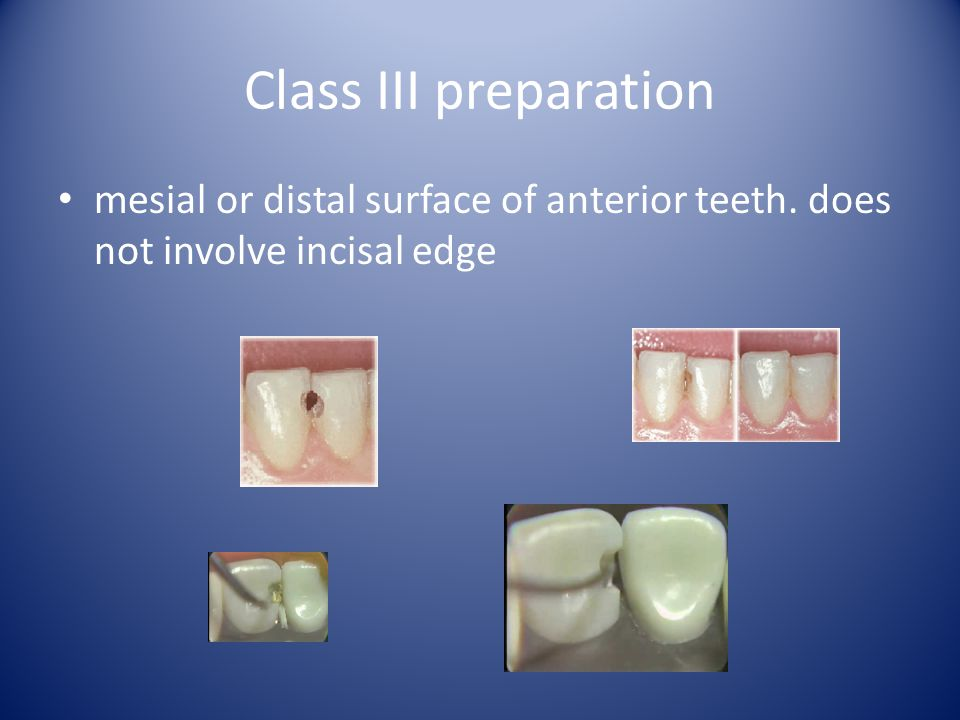 Class III preparation mesial or distal surface of anterior teeth. does not involve incisal edge