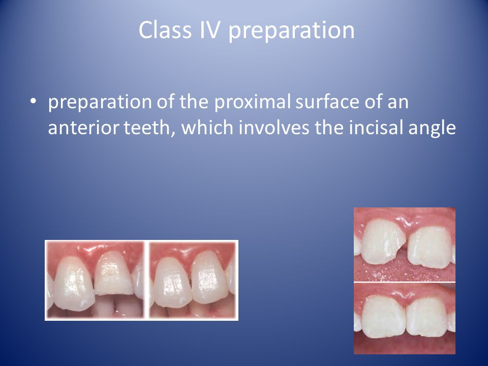 Class IV preparation preparation of the proximal surface of an anterior teeth, which involves the incisal angle.