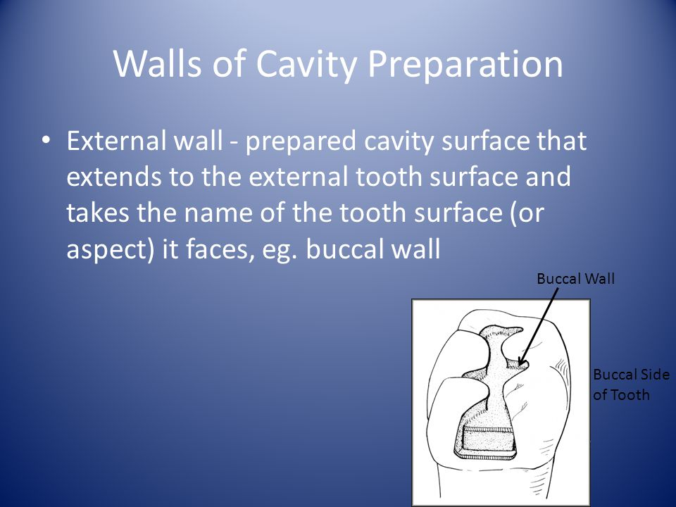 Walls of Cavity Preparation