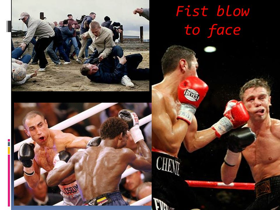 Fist blow to face