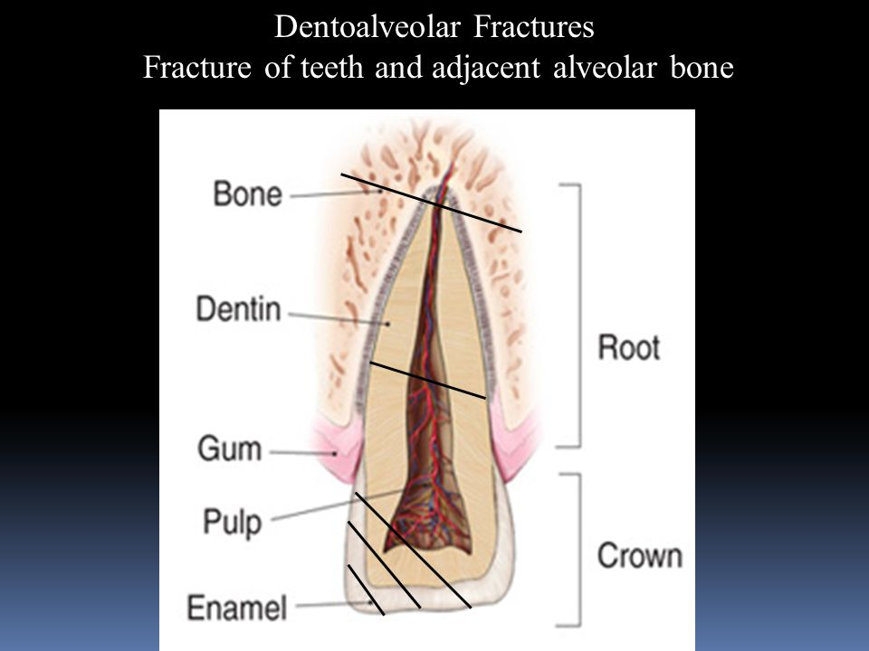 Dentoalveolar Fractures Fracture of teeth and adjacent alveolar bone