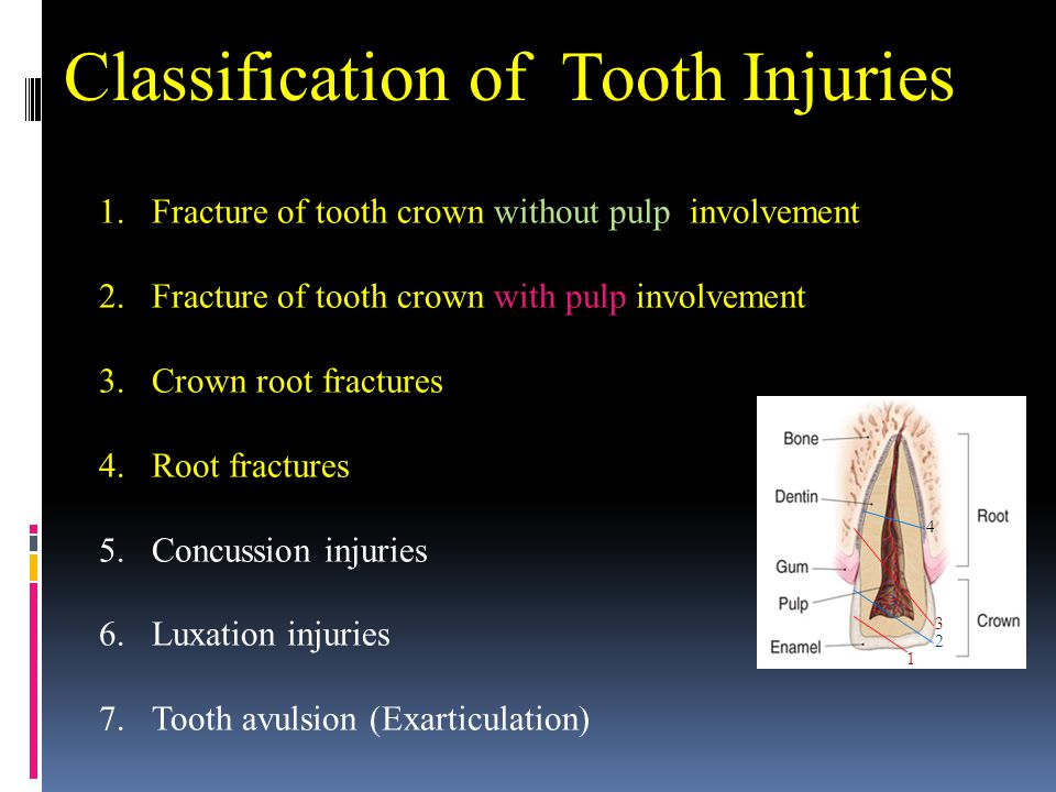 Classification of Tooth Injuries