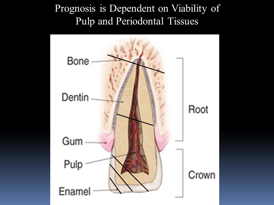 Prognosis is Dependent on Viability of Pulp and Periodontal Tissues