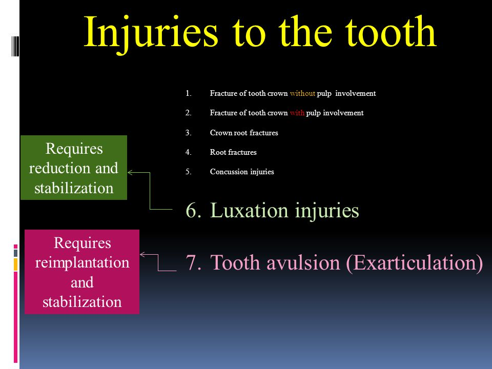 Injuries to the tooth Luxation injuries