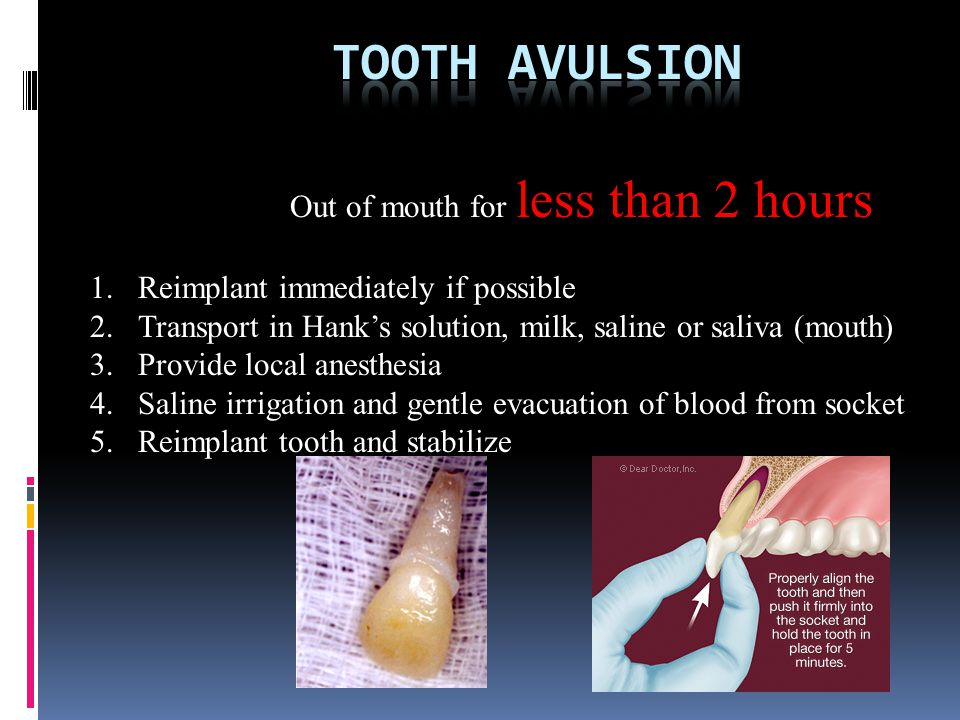 Tooth avulsion Out of mouth for less than 2 hours