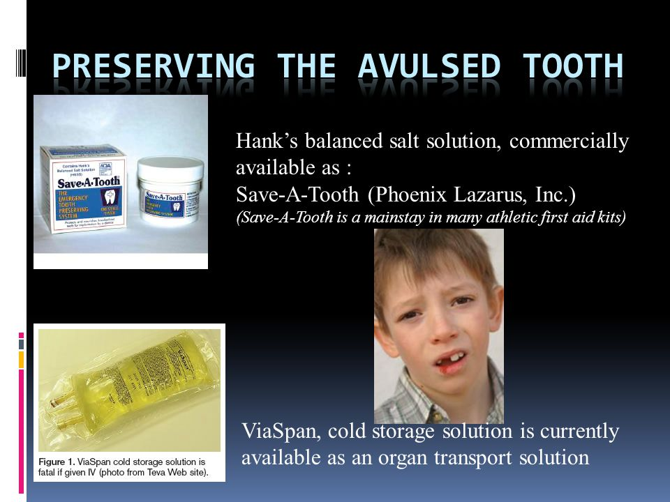 Preserving The avulsed tooth