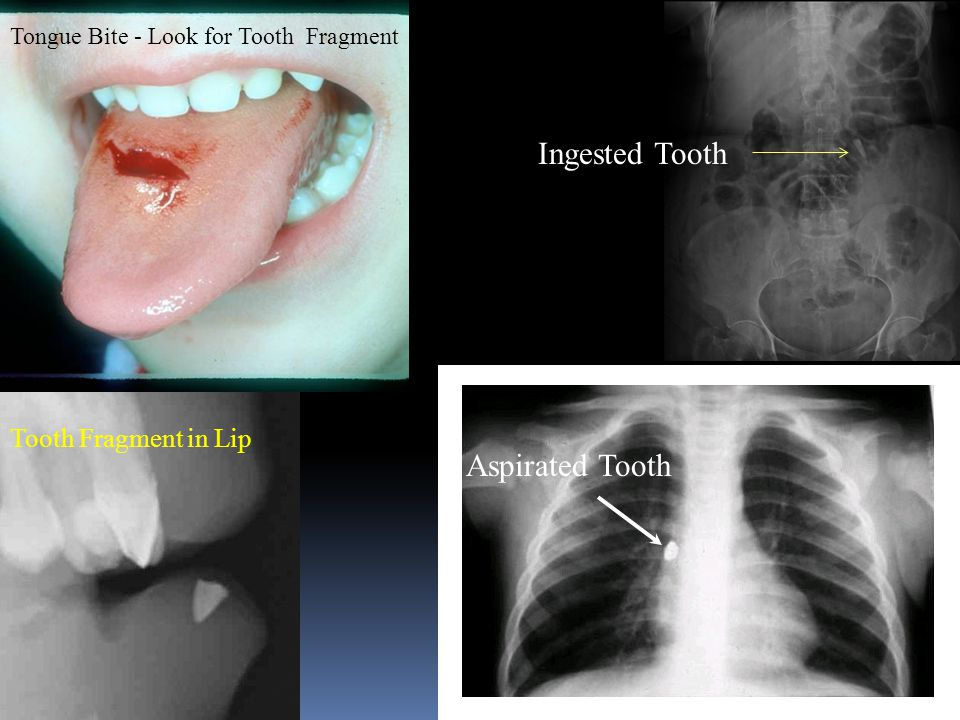 Ingested Tooth Aspirated Tooth Tooth Fragment in Lip