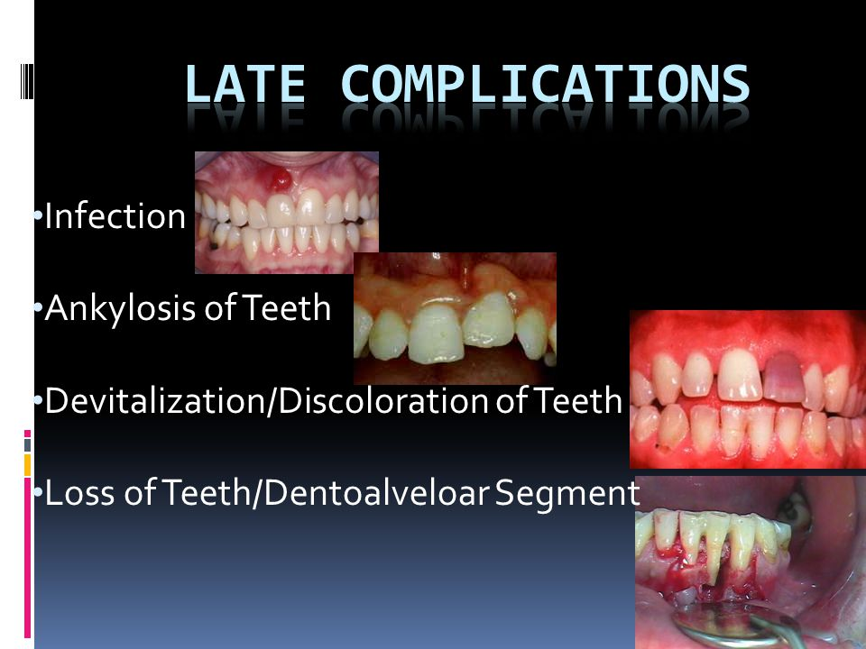 Late Complications Infection Ankylosis of Teeth