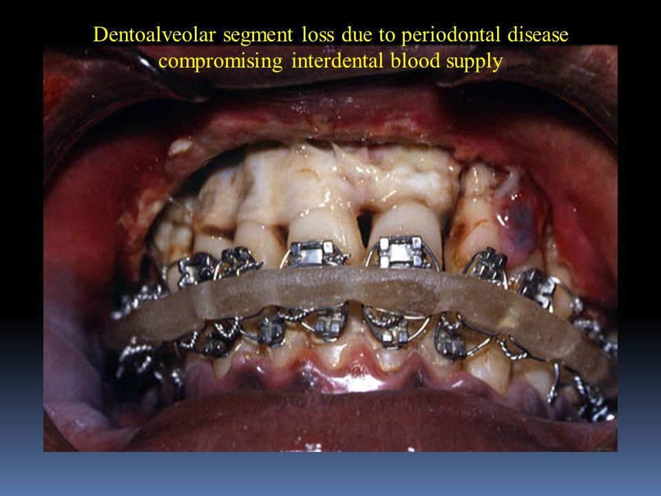 Dentoalveolar segment loss due to periodontal disease compromising interdental blood supply