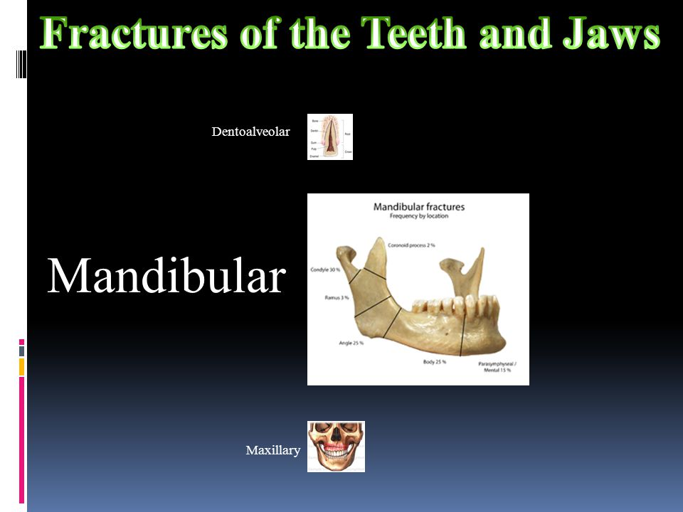 Fractures of the Teeth and Jaws