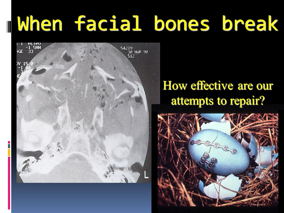 When facial bones break