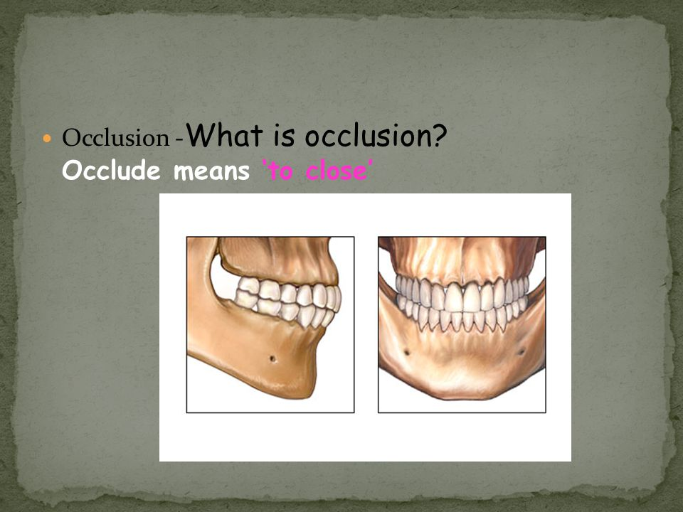 Occlusion -What is occlusion Occlude means 'to close'