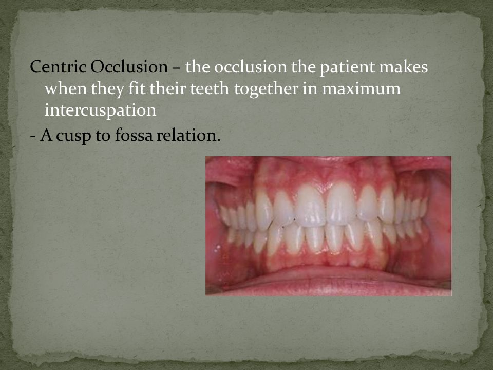Centric Occlusion – the occlusion the patient makes when they fit their teeth together in maximum intercuspation - A cusp to fossa relation.
