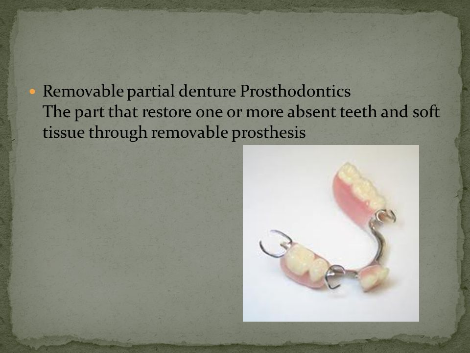 Removable partial denture Prosthodontics The part that restore one or more absent teeth and soft tissue through removable prosthesis