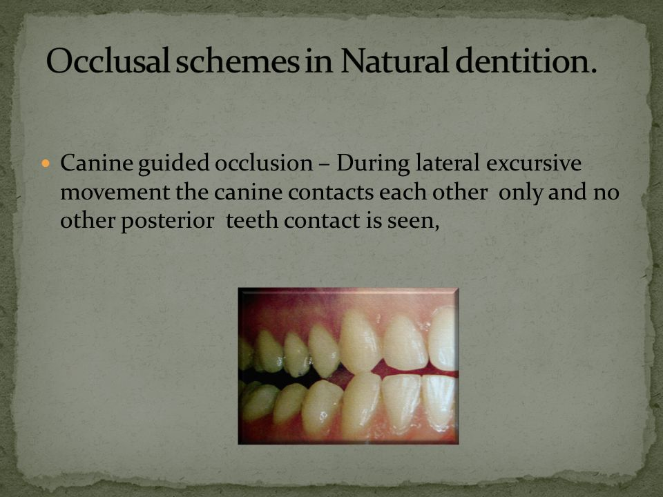 Occlusal schemes in Natural dentition.