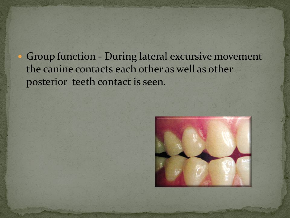 Group function - During lateral excursive movement the canine contacts each other as well as other posterior teeth contact is seen.
