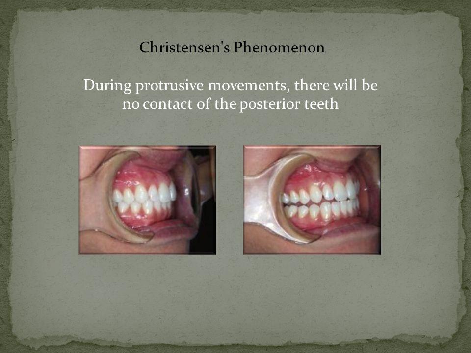 Christensen s Phenomenon During protrusive movements, there will be