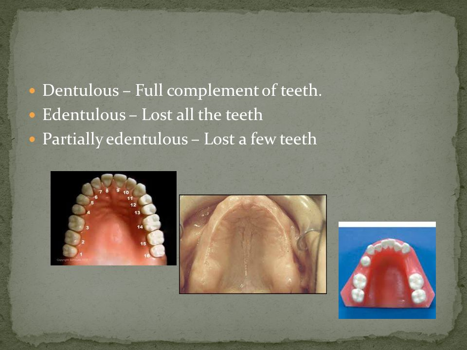 Dentulous – Full complement of teeth.